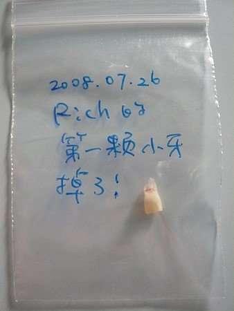 Rich的第一顆乳牙掉了